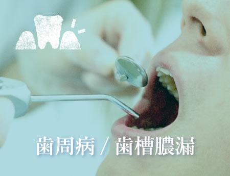 予防歯科・歯のクリーニング・PMTC